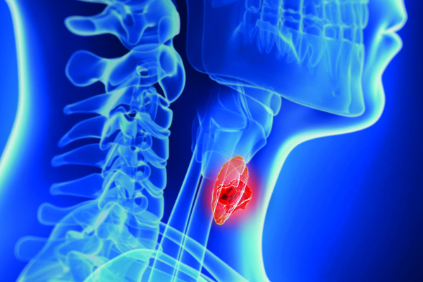 HIPOTIREOIDISMO: Investigação e Diagnóstico