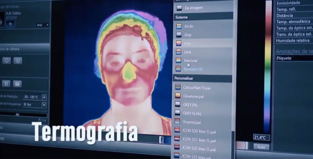O que é termografia e o que esse exame faz por você?